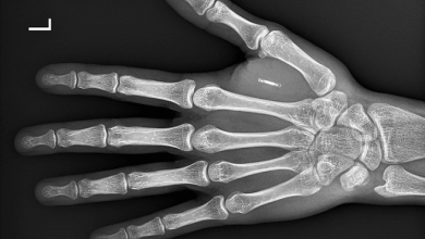 Another Conspiracy Theory Comes True As Pentagon Creates Implantable Microchip To Detect COVID