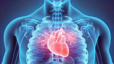 6 Foods That'll Bring You Heartburn Relief